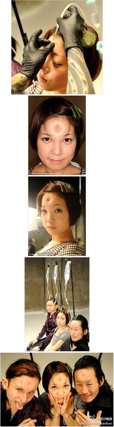日本正在兴起的一种人体变形美容潮