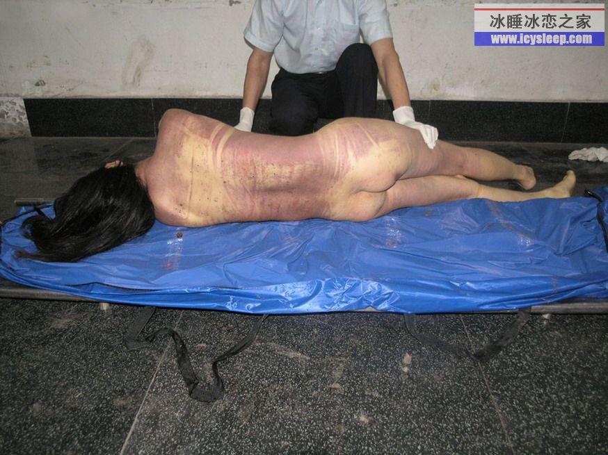 解剖溺水美女尸体《法医解剖真人女尸体《法医被解剖