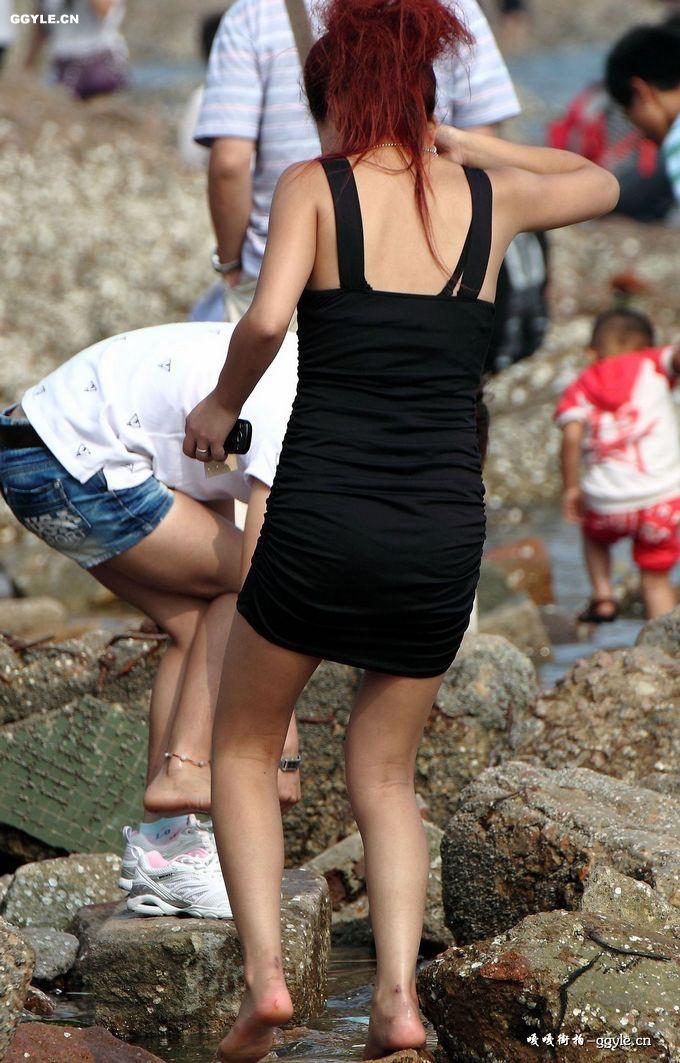短裙美女的脚受伤啦