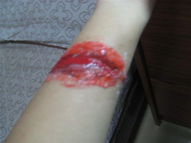 胳膊刮伤的图片图片大全 脚部已经肿起来,胳膊也被刮伤.