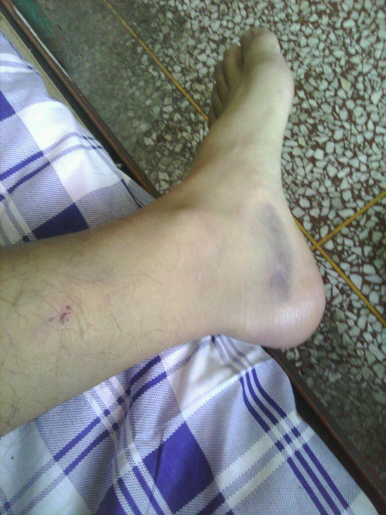 我的脚受伤了 不能打篮球了