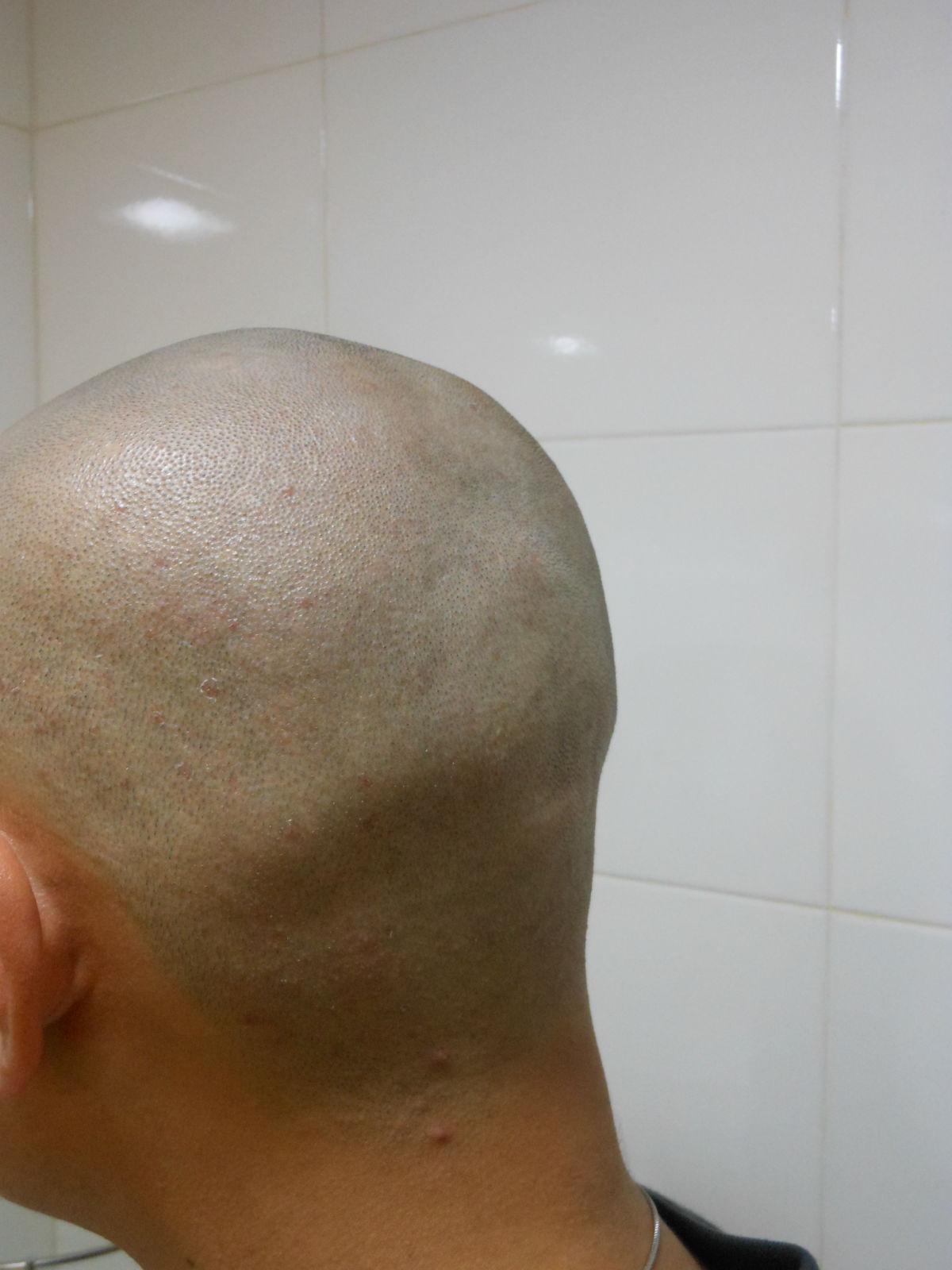 个性男士光头发型造型图片