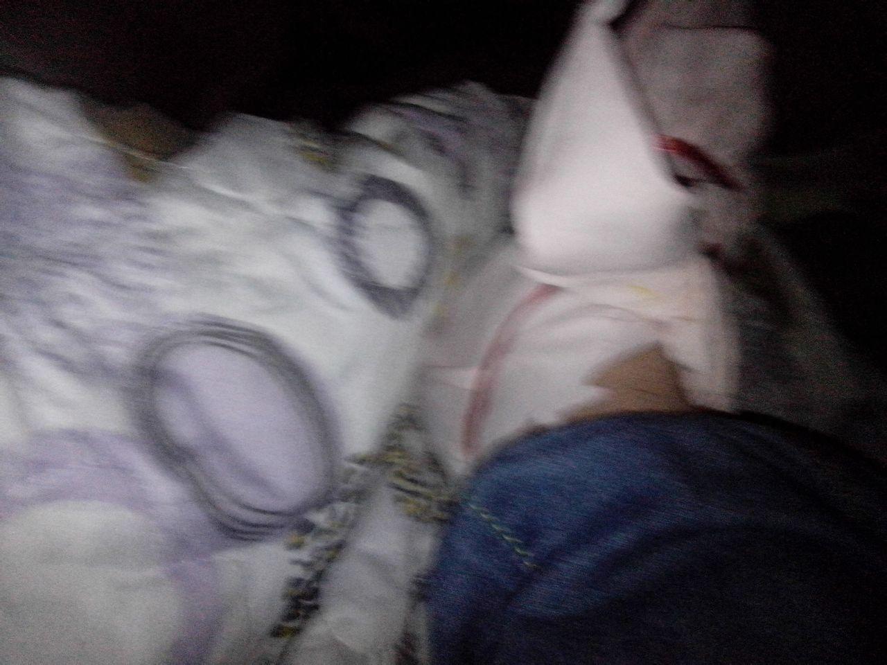 脚骨折了 睡觉平躺疼的厉害