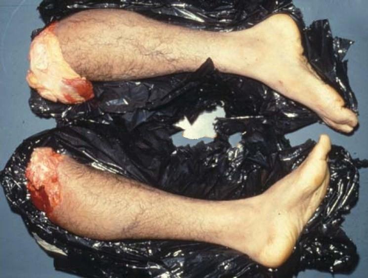 肢解美女尸体肢解切割尸体肢解男子尸体肢解女人尸体