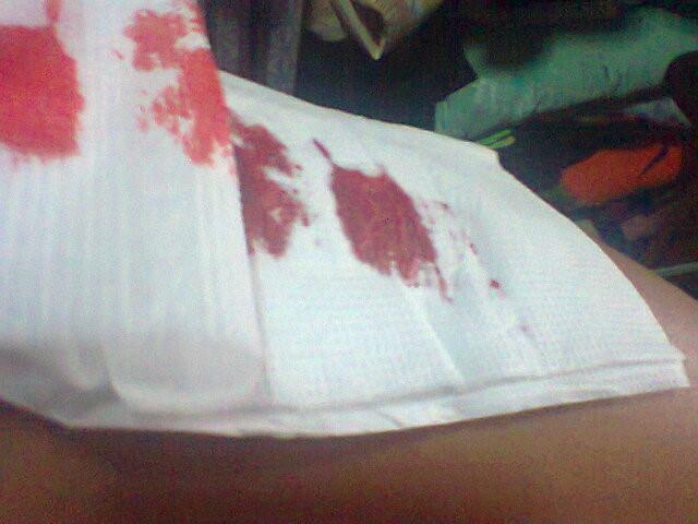 女生自残割手腕 流血