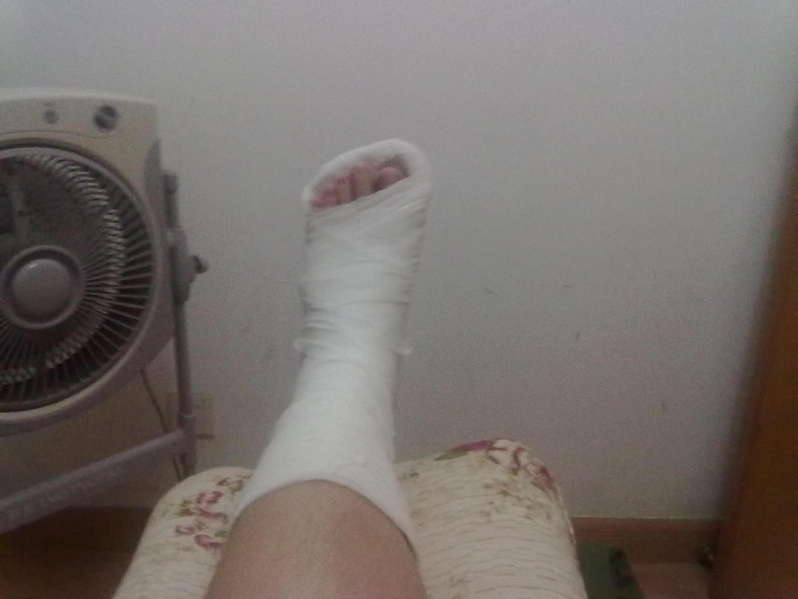 只脚哪里骨折了吗?