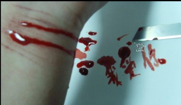 胳膊自残流血照片