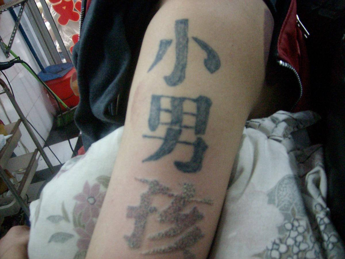 洗纹身过后留疤图片展示图片