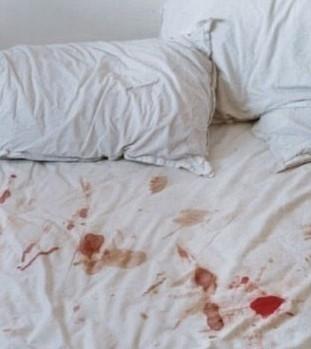 床单上的血迹去除妙招