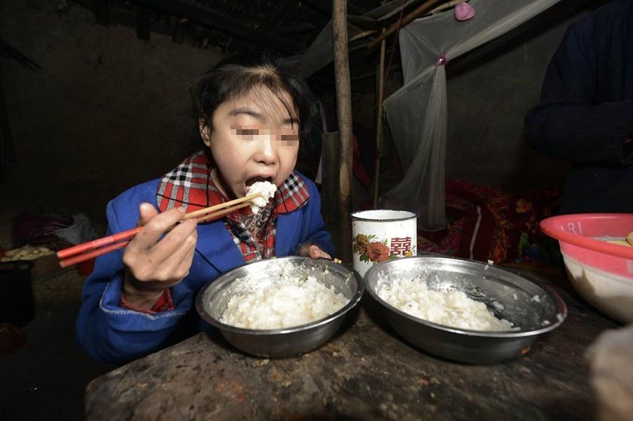 花季少女患怪病 一天吃10多斤米