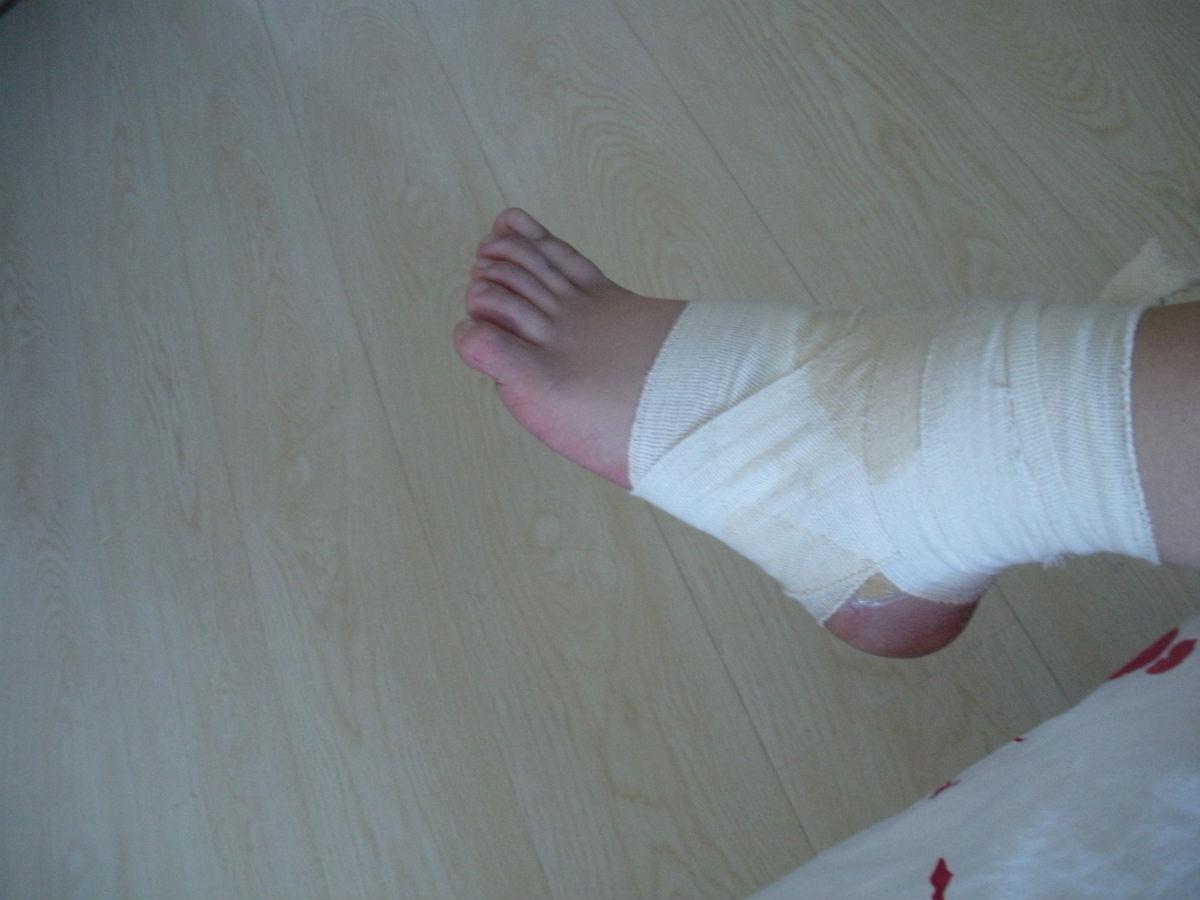 女生脚受伤图片_陈晓脚受伤图片_脚受伤的图片女_小 ...