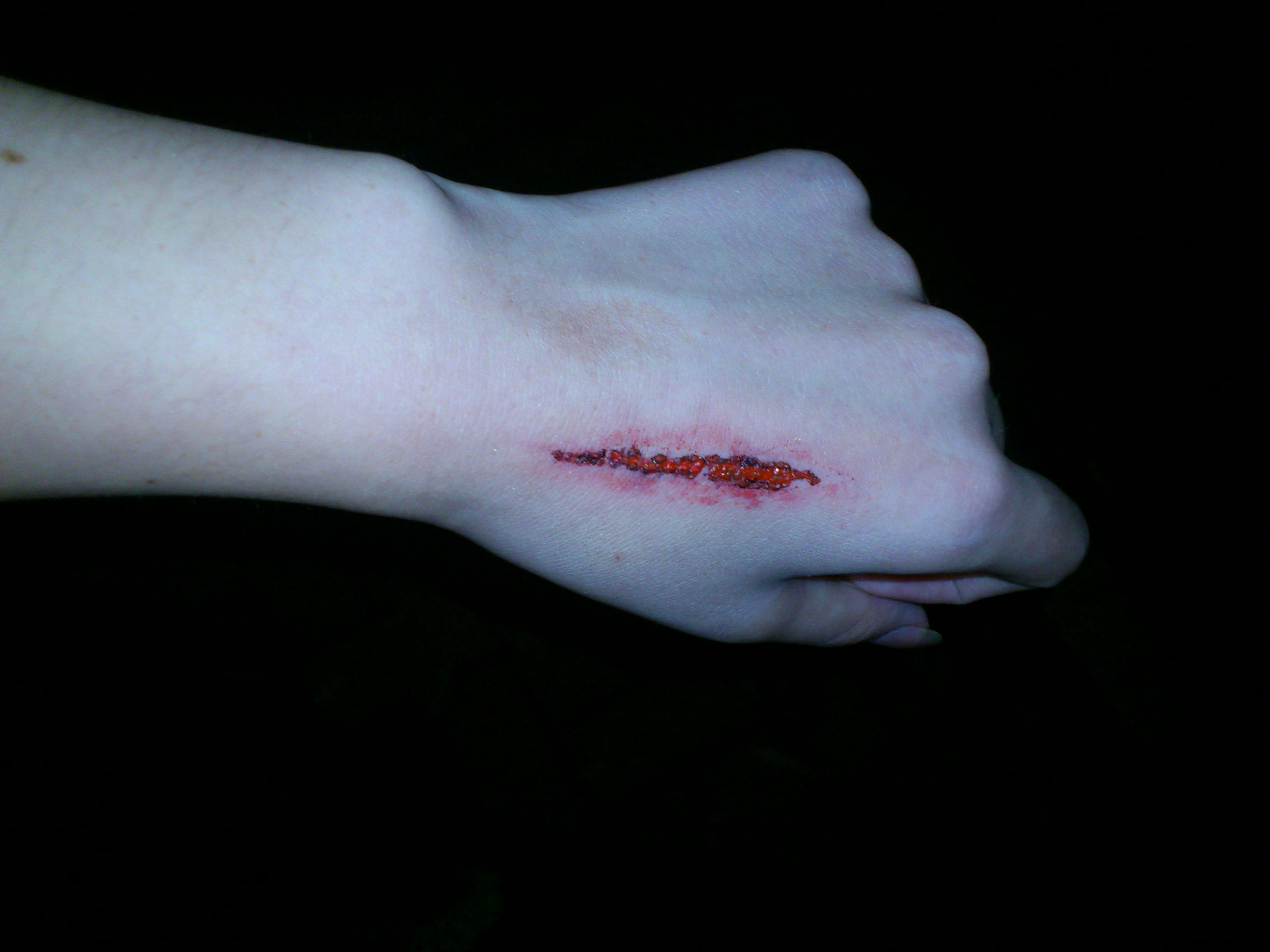 手受伤了很严重求安