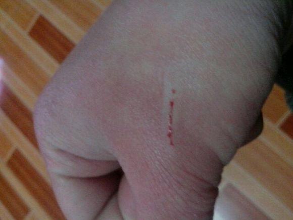手上一个小伤口图片
