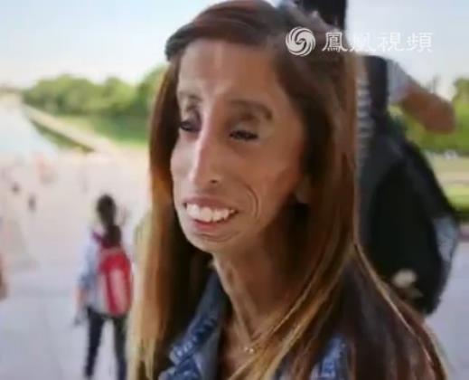 最丑女孩成为反欺凌