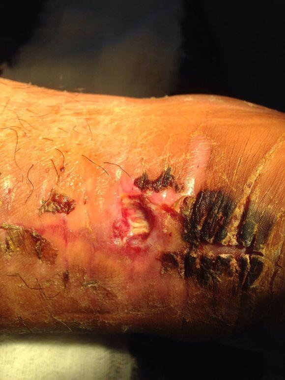 跟腱断裂手术后一般多久会消肿?有什么要注意的?
