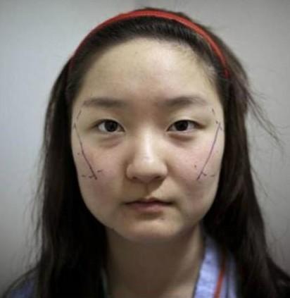 高清实拍韩国人造美女全程