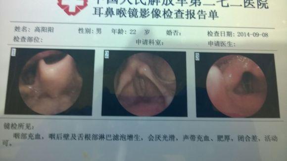 咽部充血_慢性喉炎症状(3)检查:咽部慢性充血,加重.