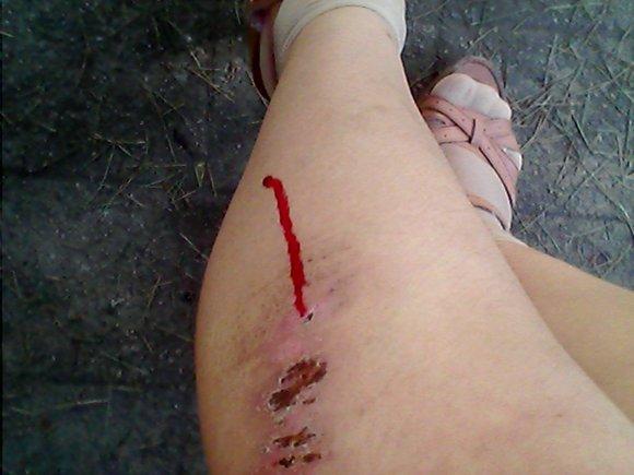然后造成二次流血图片