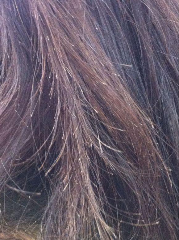 是不是头发分叉会传染图片