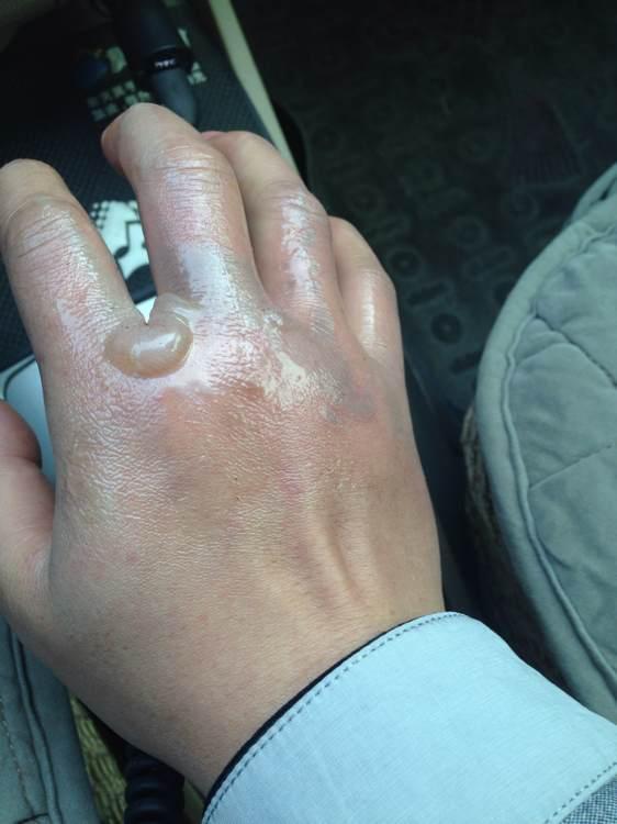 手被蒸烫伤怎么办_手被烫伤了,该 怎么 处理