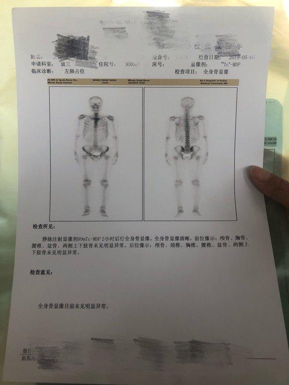 求助肺鳞癌9.5cm未扩散