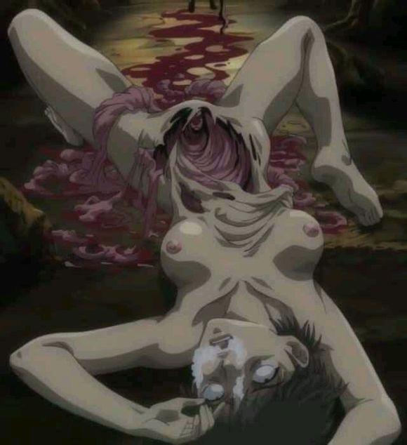 一美女被截肢 而且肚子被掏空有图