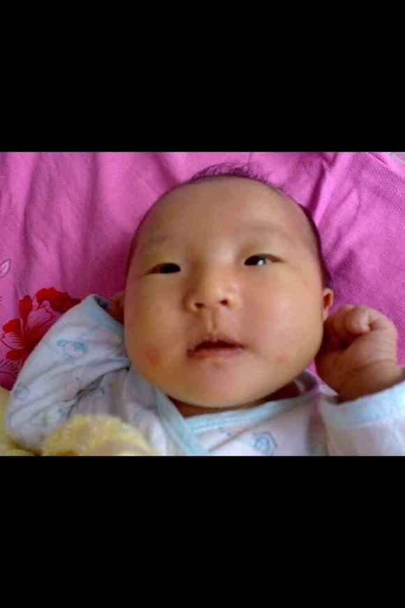 孩子刚出生的时候左侧就缺少两根肋骨导致图片
