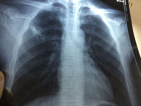 肺结核会不会传�_胸口痛会不会是得了肺结核?