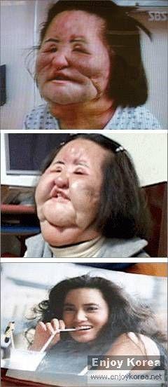 韩国美女整容失败 脸变电风扇
