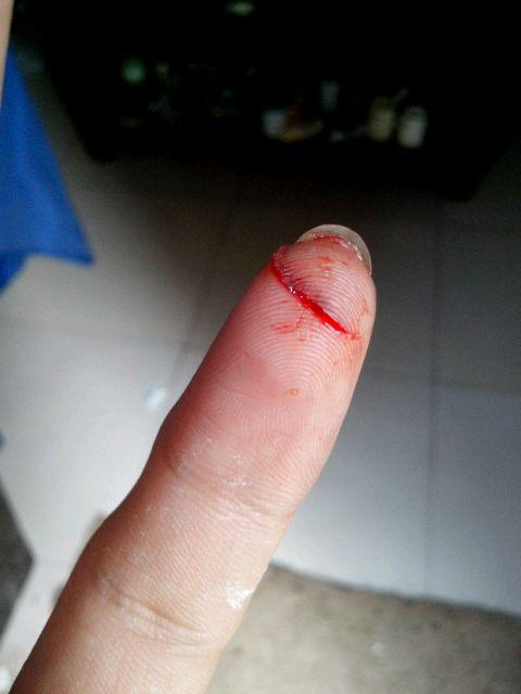切菜切到手指头,血喷了图片