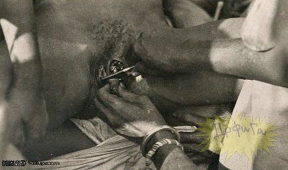 50年前拍摄的非洲女人割礼过程图