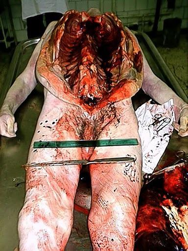 医学解剖!慎入!