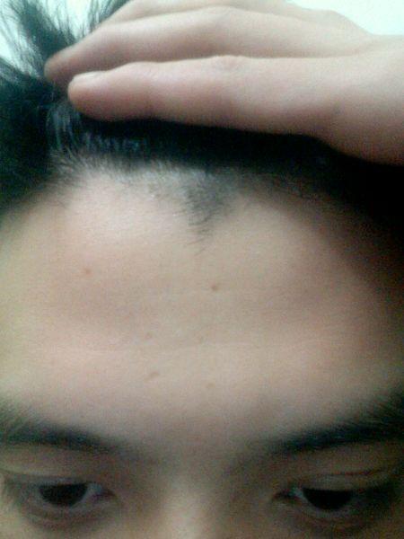 额头上的头发老是冒个尖尖出来图片