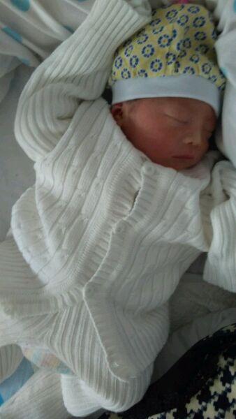 孕妇黄疸图片