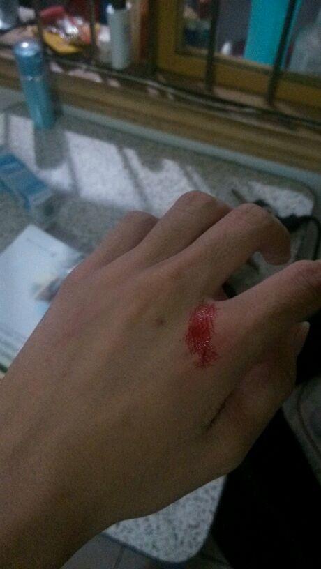 莫名其妙的手出血图片