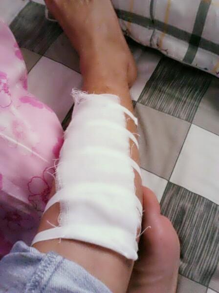 我手上的伤口终于不流血了图片