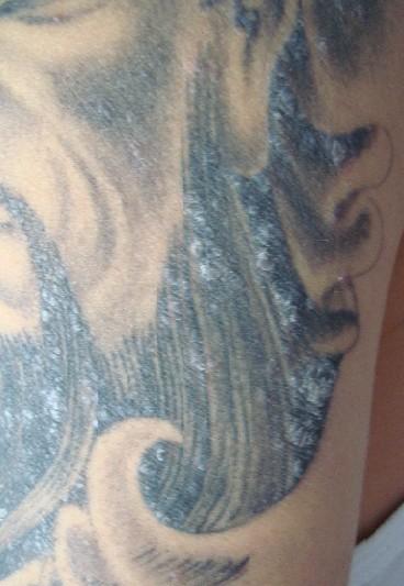 纹身掉皮后 起的疙瘩痒的厉害怎么回事啊?图片