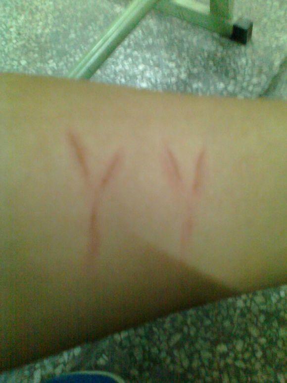 胳膊上刻字-在手臂上刻出心爱的人的名字缩写图片