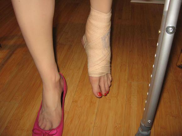 脚扭伤绷带和护踝 多图