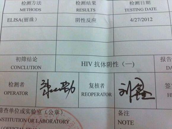 高危几天后有艾滋症状