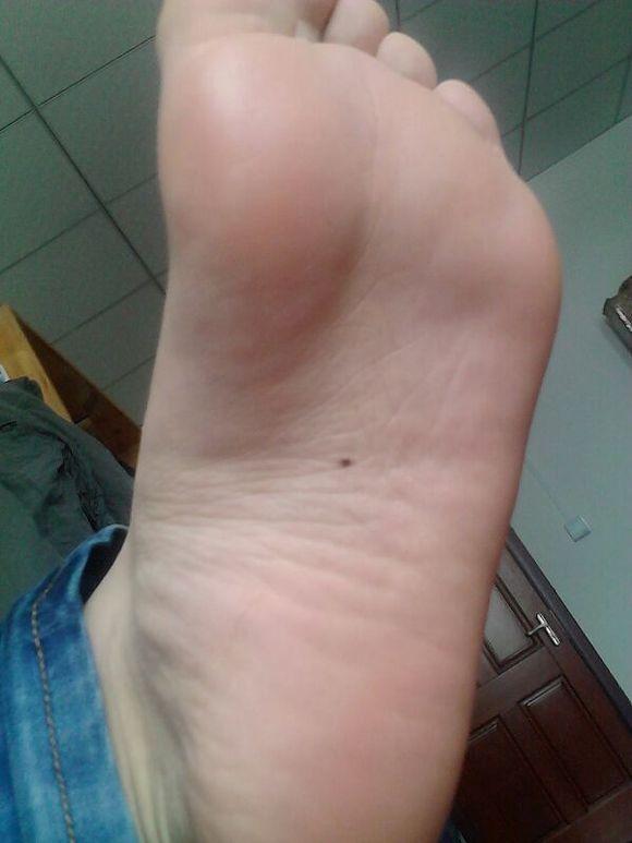 脚心痒是怎么回事