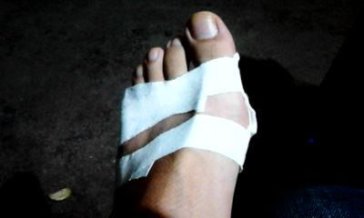 美女脚扭伤包扎图片