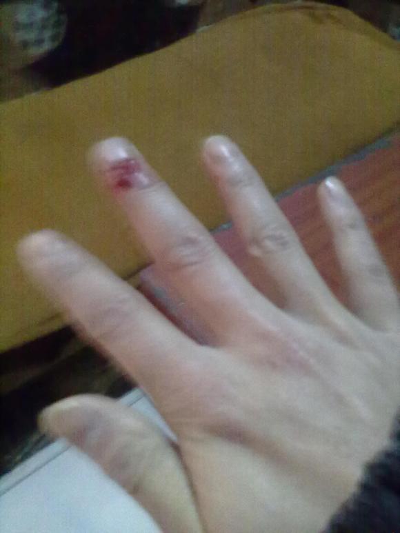 小孩子手指被门夹肿了