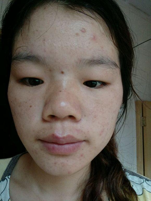脸上长痘痘位置不同 长痘痘的原因也不同 图