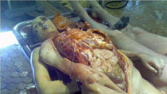 真实女尸解剖过程图片