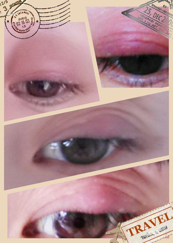 用蒸脸的熏,每天都有好转,当时,不知道什么原因眼珠红血丝很多,很多图片