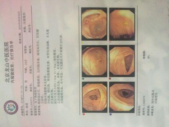 半年前做的检查,慢性结肠炎.一直便秘.吃舒泰清还可以!