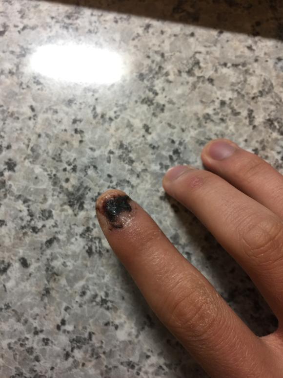 有没有人手指甲被砸掉过的经历,进来看看吧图片