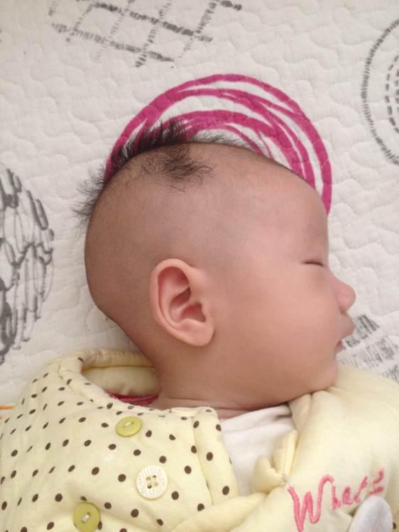 三个月宝宝后脑勺疙瘩大图片图片