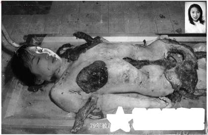 日本鬼子剥中国女人皮_反击战中被俘的中国女兵,这就是越猴的残暴兽行!